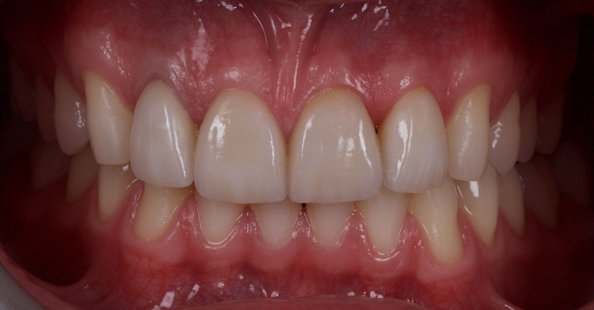 Ceramic Veneers After