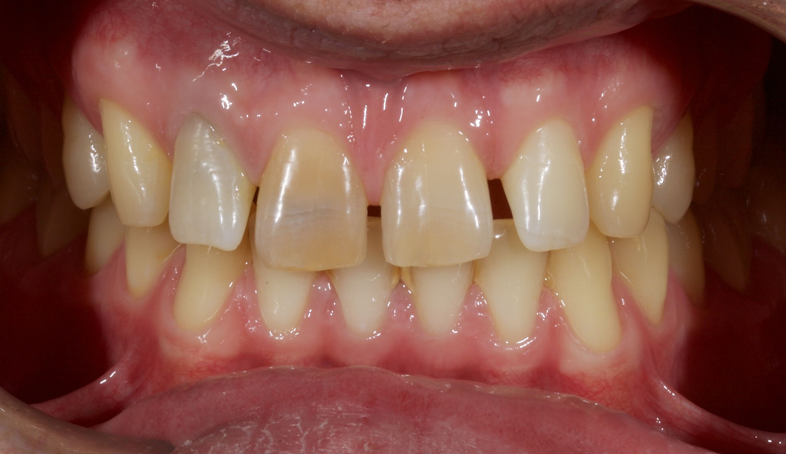 Ceramic Veneers Before